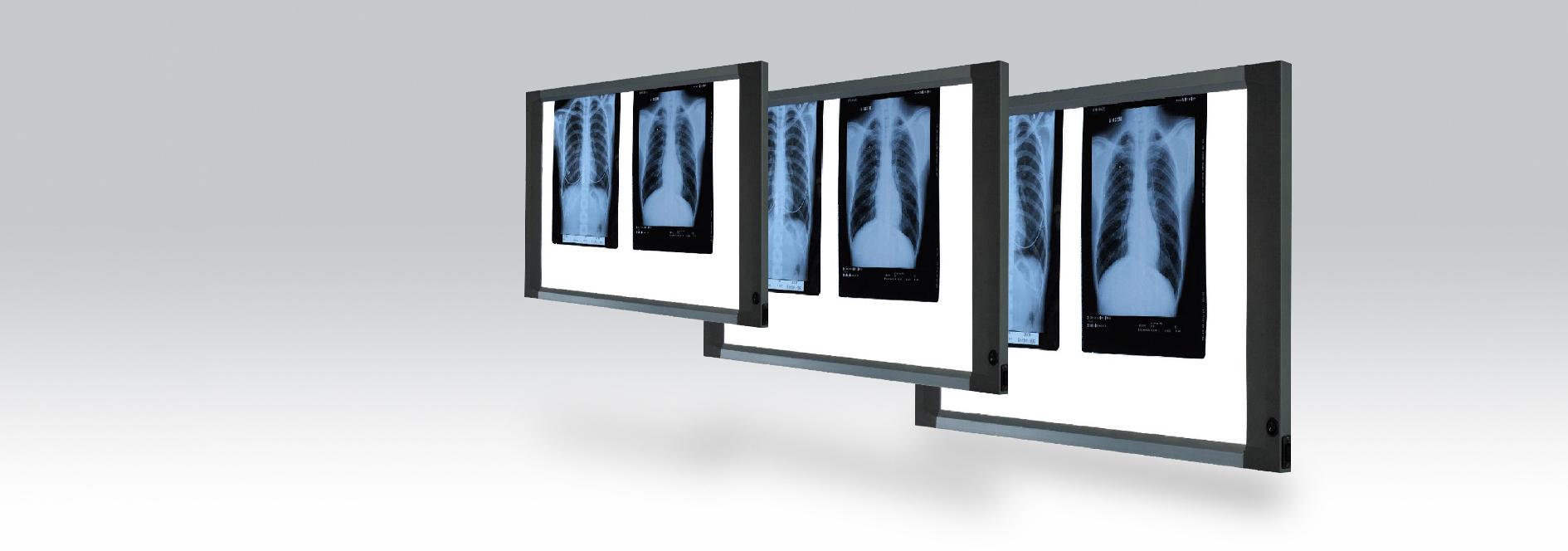 X-Ray Viewers